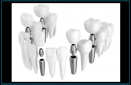 השתלות שיניים